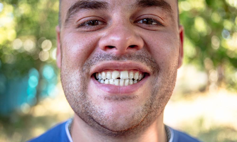 fracture dentaire - Clinique Bernard Noël Beloeil et Saint-Basile-le-Grand